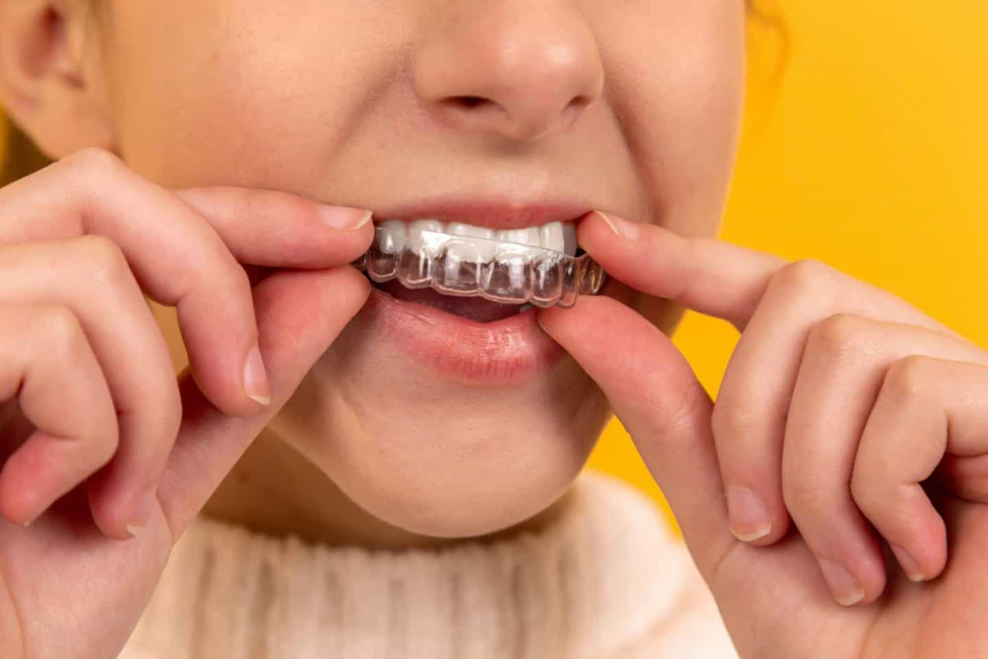 Benefits of Clear Aligners